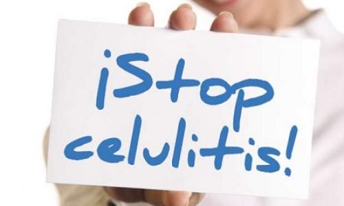 Silhouette System una esperanza para eliminar la celulitis